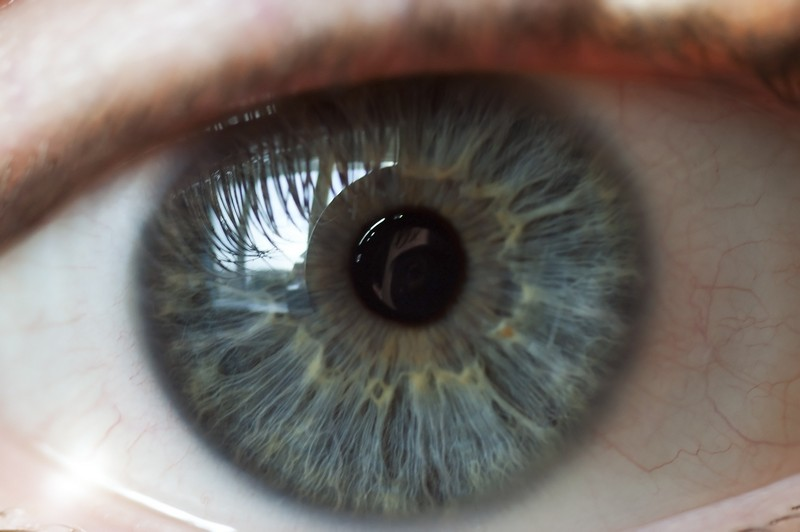 Digital Retina Imaging  Aventura, FL